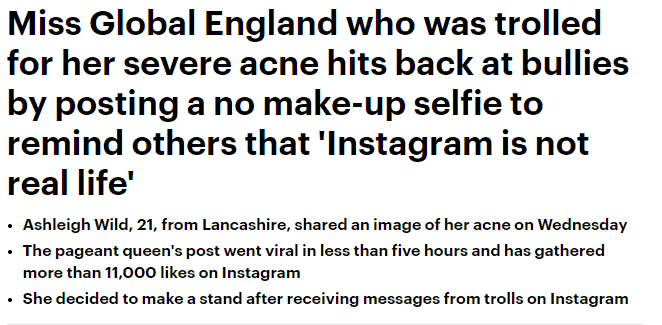 Miss Global England, Ashleigh Wild, has featured in The Daily Mail!